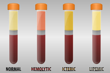 Blood serum common types