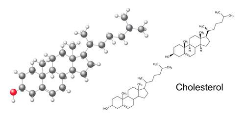 Structural formulas and model of cholesterol molecule