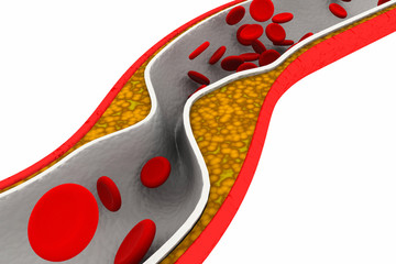 Cholesterol plaque in artery