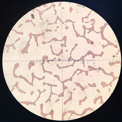 Photomicrograph of Penicillium