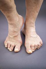 Feet Of Woman Deformed From Rheumatoid Arthritis