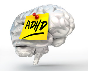 adhd yellow note on brain