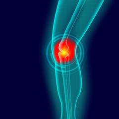 Kneee pain