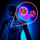 COPD - Chronic obstructive pulmonary disease poster