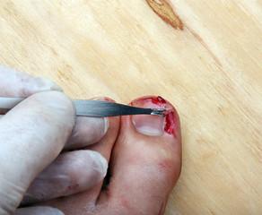 Broken bleeding finger nails