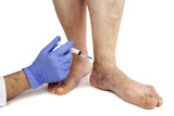 Varicose veins treatment poster