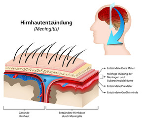 Meningitis, Hirnhautentzündung Illustration