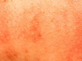 background of pig skin