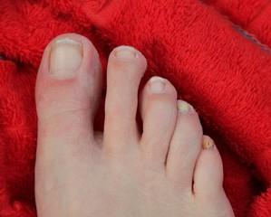 Mit Nagelpilz befallener Fuß