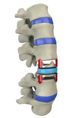 Disco artificiale spina dorsale operazione chirurgica
