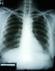 X-ray film of woman chest