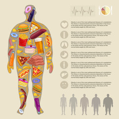 Fat man, fast food. Infographic vector