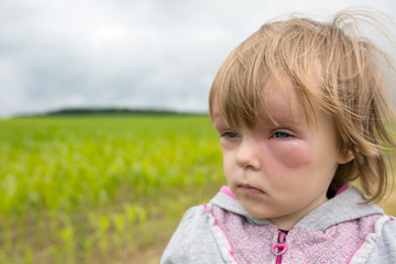 Allergy after mosquitoes biting at small girl