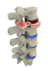 Frattura traumatica vertebrale, frattura da scoppio