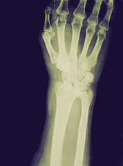 Retro look Xray of epiphysial radial fracture reduced with perma