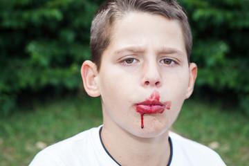 Junge mit verschmiertem mund
