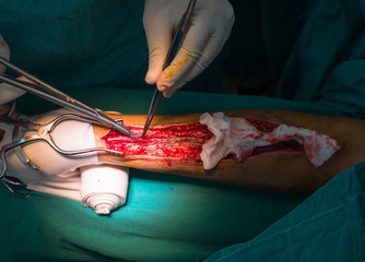 harvesting radial artery for arterial conduit for coronary arter