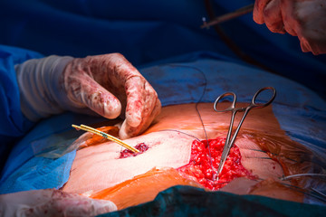 Surgery in a modern hospital being performed by a team