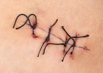 Wound with surgical stitch
