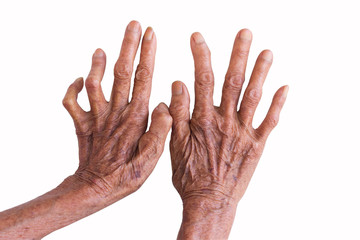 hands of a leprosy isolated on white background
