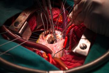 Repair tricuspid valve