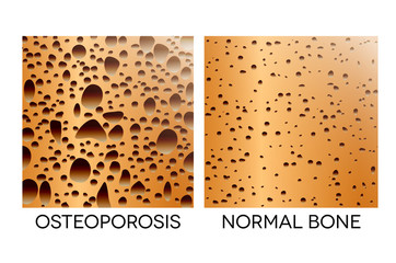 Osteoporosis, unhealthy bone and healthy bone