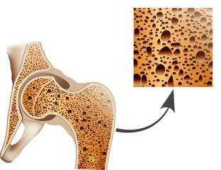 Osteoporosis in femur bone, human bone anatomy.