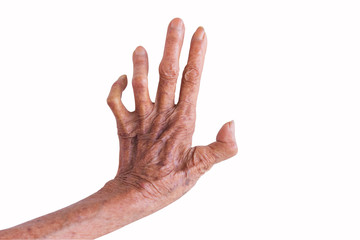 left hand of a leprosy isolated on white background
