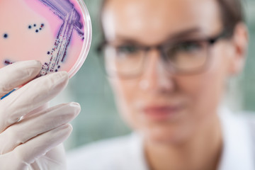 Microbiologist holding a Petri dish with bacteria