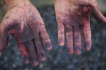 Brazilian Hands Stained from Acai Berries