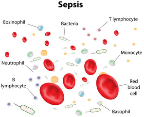 Labeled Sepsis DIagram