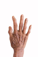 right hand of a leprosy isolated on white background