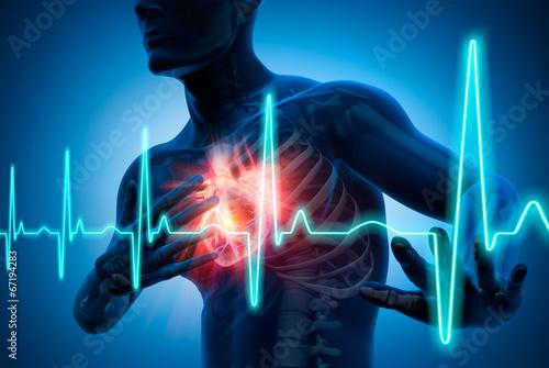 Leinwanddruck Bild Herzinfarkt