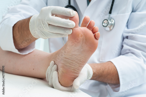 canvas print picture Tinia pedis or Athletes foot