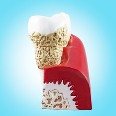Tooth, dental section model.