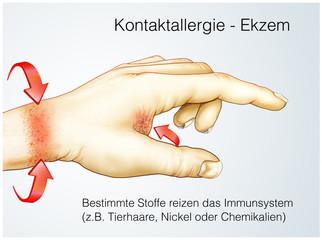 Kontaktallergie.Haut-Ekzem