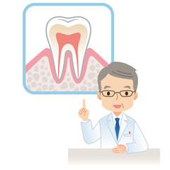 歯医者 虫歯予防
