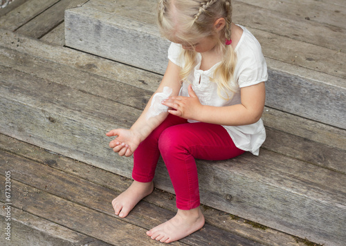 Girl applying cream on allergic skin, eczema treatment
