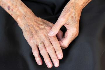 Schmerzende Hände einer alten Frau