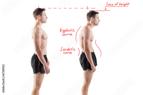 Man with impaired posture position defect scoliosis and ideal - 67381452