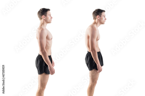 Leinwanddruck Bild Man with impaired posture position defect scoliosis and ideal