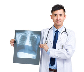 Doctor hold with x ray