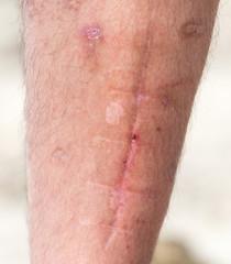 scars on his leg