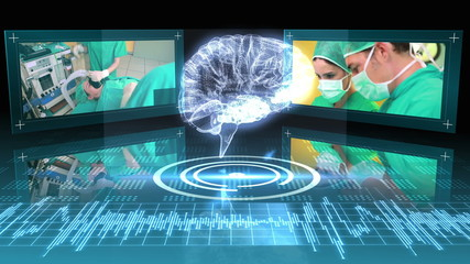 Revolving brain graphic with interface with surgery clips