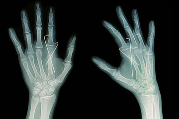 Film x-ray of hand fracture: fracture metacarpal bone
