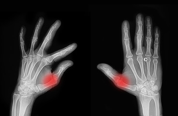 X-ray hand and finger injury