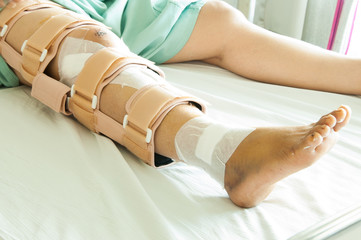 woman wearing a leg brace, Broken leg