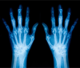 Photo X-Ray scan human