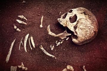 skull and bone