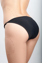 Body correction with the help of plastic surgery